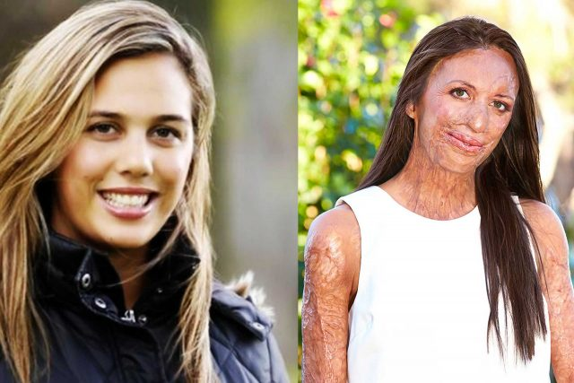 turia pitt before and after